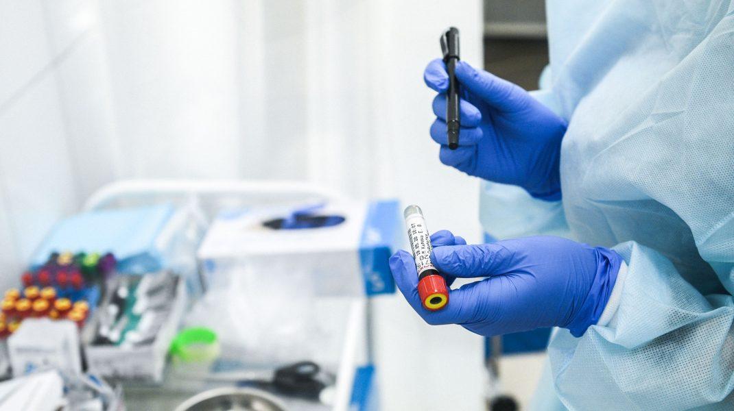 Studiu în Singapore: pacienții testați pozitiv cu COVID-19 nu mai transmit virusul după 11 zile. Cum este posibil