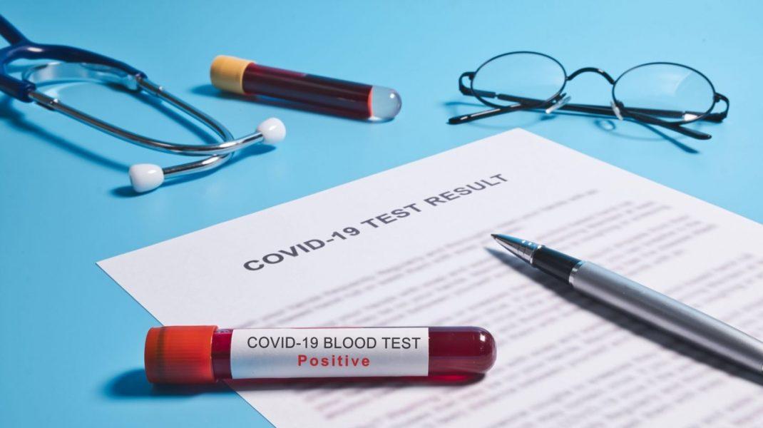 38 de români din Germania, pozitivi la testul COVID-19. Unul dintre ei a murit, iar altul este internat în spital