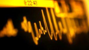 """Ziua inimii. Mărturia unei paciente, cu 4 stenturi la inimă, care """"a murit şi a înviat în doar câteva minute"""""""