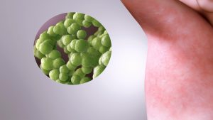 OMS atrage atenţia că pandemia de coronavirus perturbă lupta împotriva rujeolei