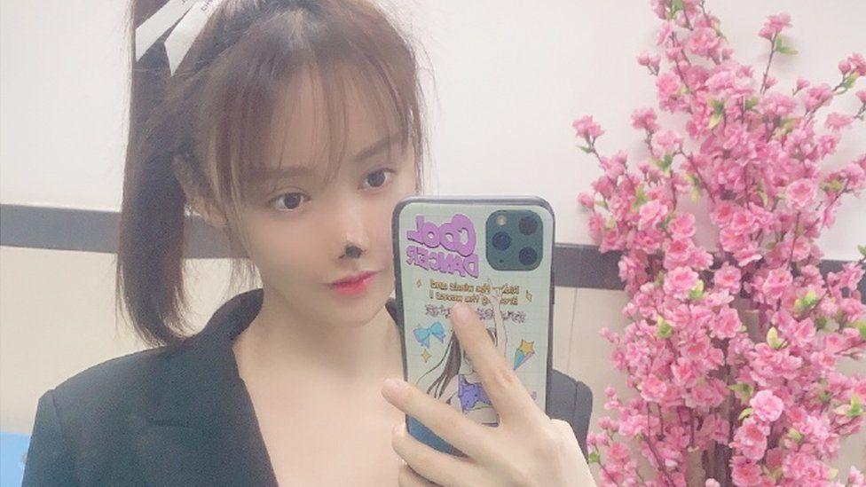 """Operație """"made in China"""": O actriță a rămas fără vârful nasului după o intervenție estetică nereușită. FOTO"""