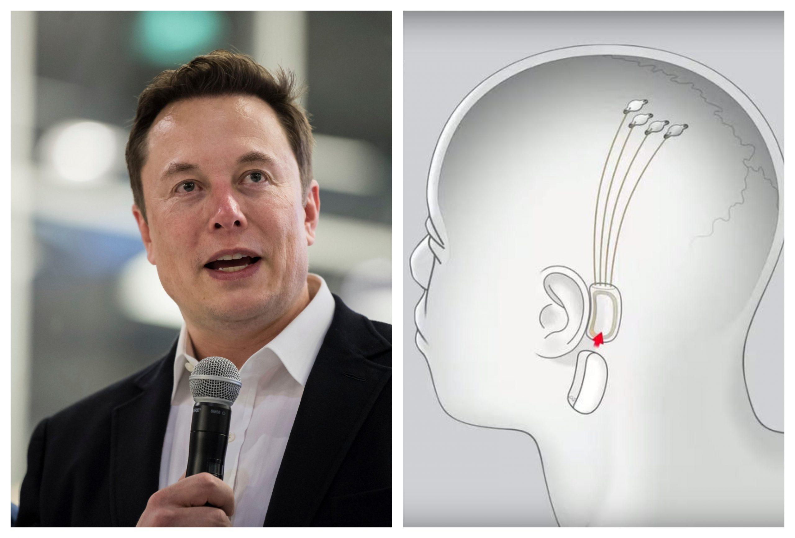 Elon Musk vrea să implanteze microcipuri în creierele oamenilor. Tot ce trebuie să știi despre Neuralink