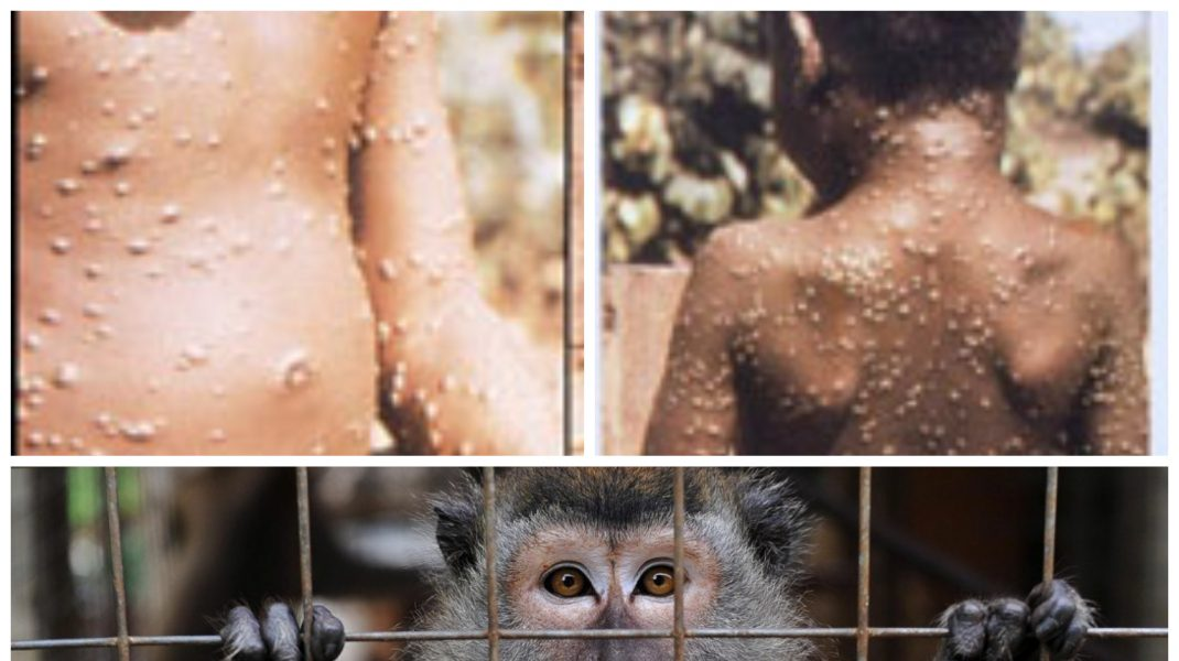 cazuri de variola maimutei