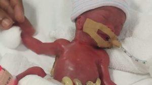 Cel mai mic bebeluș din lume născut